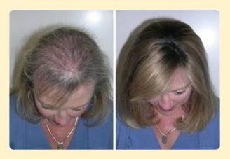 Hairstim Effekt